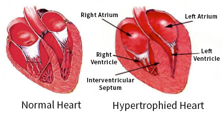 Hypertrophied Heart