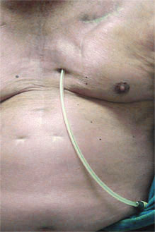 Catheter in abdomen